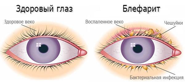 Глазные капли альбуцид: инструкцию по применению для новорожденных и детей старшего возраста