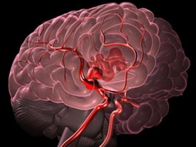 Симптомы, причины и лечение внутрижелудочкового кровоизлияния в мозг у новорожденных, последствия для детей
