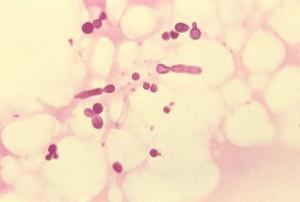 Лишай у беременных: розовый, отрубевидный и другие виды, влияние на плод и лечение