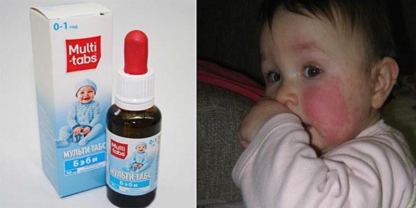 Может ли у грудничка быть аллергическая реакция на витамин д: симптомы, лечение и последствия для детей