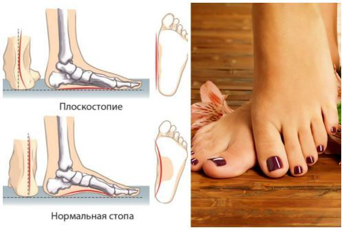Массаж и лфк при плоскостопии у детей: гимнастические упражнения и зарядка для стоп в домашних условиях