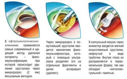 Причины амблиопии у детей, лечение