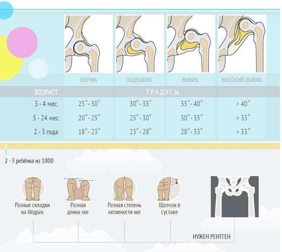 Узи тазобедренных суставов для новорожденных и грудничков: нормы и расшифровка показателей