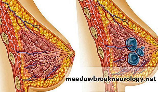 Болит грудь в период месячных и после: почему может возникать боль, что делать в таких ситуациях, опасно ли это?