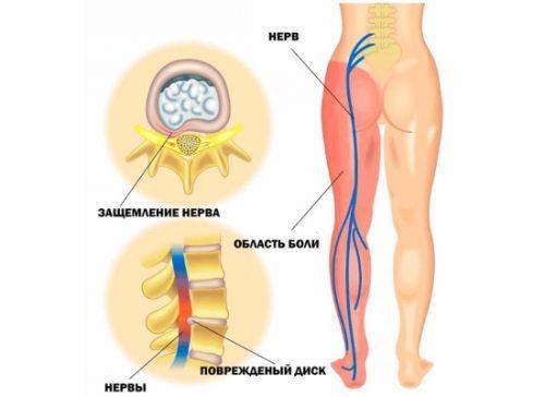 Защемление и воспаление седалищного нерва у женщины при беременности: почему защемляет в ягодице и в спине и как лечить?