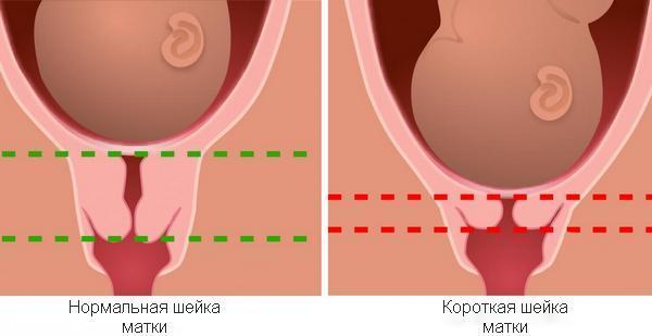 Лечение истмико-цервикальной недостаточности при беременности, симптомы, причины и профилактика ицн