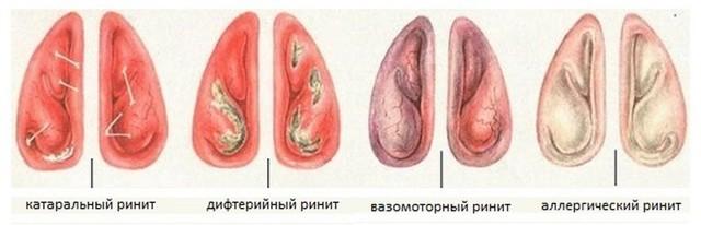 Капли и другие средства от насморка и заложенности носа для беременных: какие можно в 1–3 триместре, как влияют на плод?