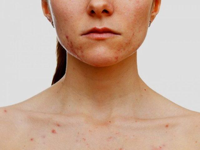 Прыщи на лице, животе и других частях тела во время беременности на разных сроках: причины, диагностика и лечение