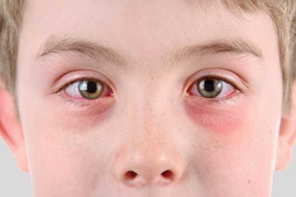 Инструкция по применению глазной тетрациклиновой мази для новорожденных и детей 2-3 лет