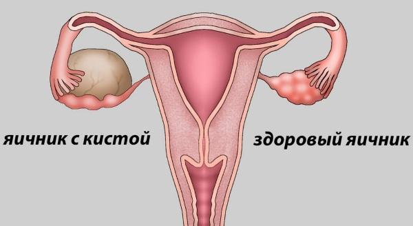 Что такое фолликулы, сколько их должно быть в норме, как долго они развиваются в яичниках у женщин?