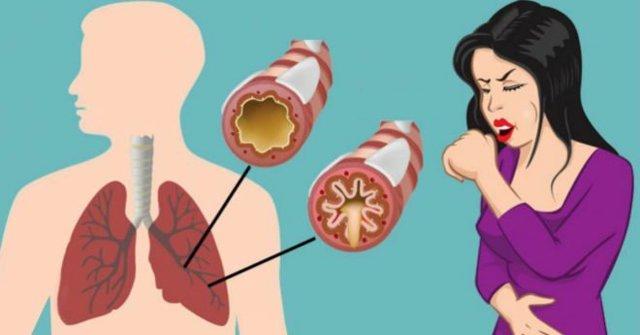 Что можно принять от кашля кормящей маме: сиропы, сборы и отхаркивающие средства во время грудного вскармливания