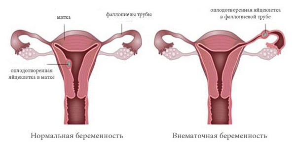 Боль в левом боку при беременности: почему болит внизу живота и под ребрами?