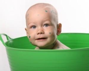 Когда можно купать ребенка во время ветрянки и после заболевания: сроки и рекомендации