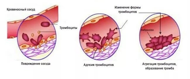 Почему у ребенка пониженный уровень тромбоцитов в крови, о чем это говорит: причины и последствия