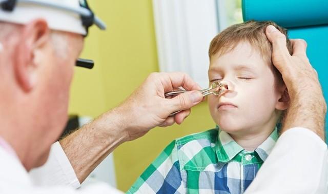 Как снять сильный отек носа у ребенка: лечение слизистой оболочки носоглотки