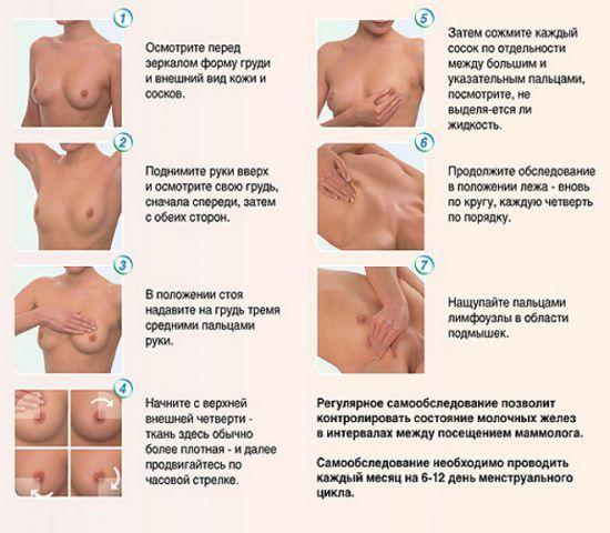Нагрубание молочной железы при грудном вскармливании: лечение уплотнений и
