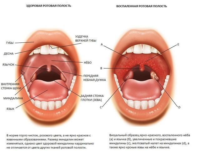 У ребенка постоянно красное рыхлое горло - что это значит и чем лечить?