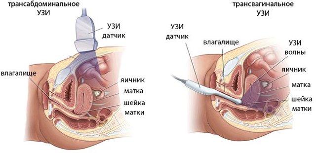 Как нужно готовиться к трансвагинальному узи органов малого таза, на какой день после месячных его делают и для чего?