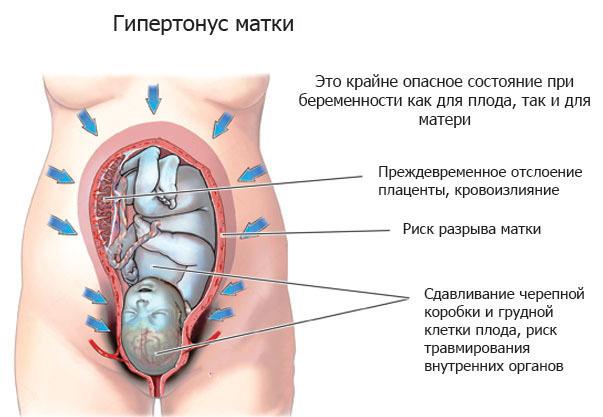 Инструкция по применению гинипрала при беременности, показания и противопоказания, возможные побочные действия и аналоги