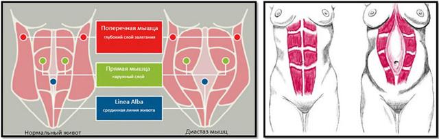 Диастаз - расхождение внутренних краев прямых мышц живота после родов: что это такое, как лечить?