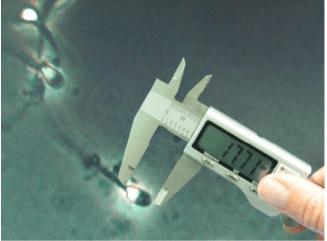 Спермограмма по методу крюгера: правила проведения анализа, норма и критерии оценки результата, калькулятор