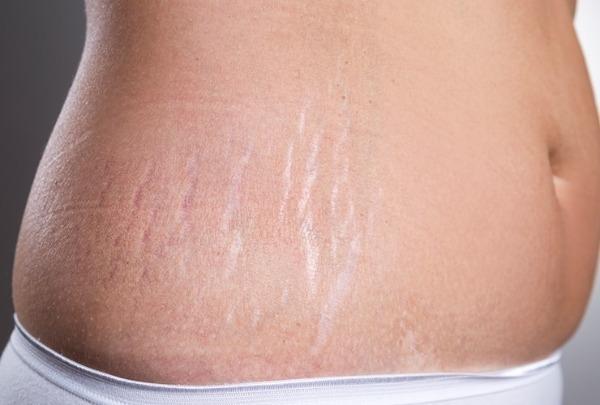 Применение кокосового масла от растяжек при беременности: можно ли им мазать живот?