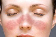 Как избавиться от шрама после кесарева сечения: самые современные способы