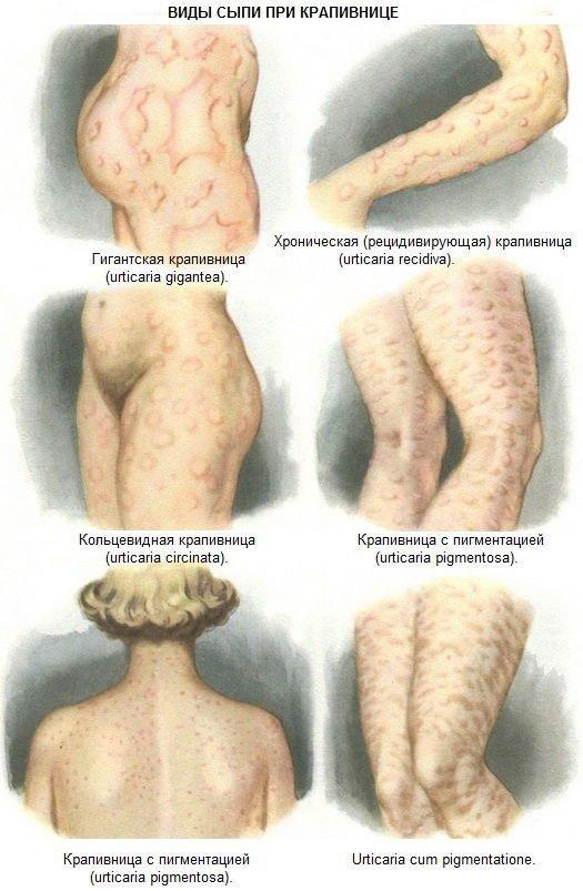 Причины и симптомы аллергии во время беременности на ранних и поздних сроках, влияние на плод, особенности лечения