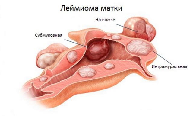 Опасность миомы матки во время беременности на ранних и поздних сроках, последствия для ребенка и мамы после 35