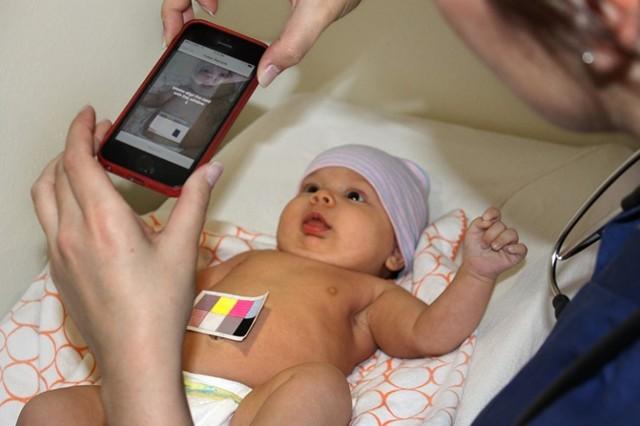 Какой билирубин должен быть у новорожденных: таблица с нормами и пределами по дням и месяцам