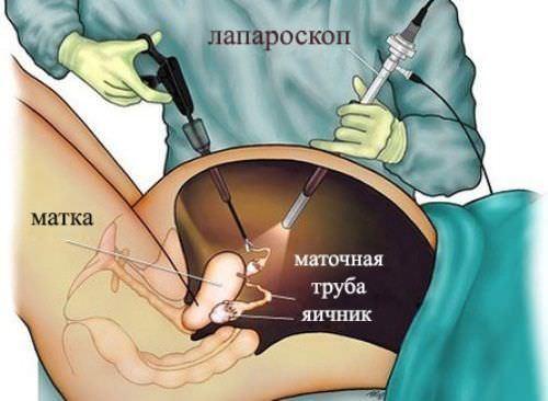 Киста желтого тела на ранних сроках беременности: когда можно забеременеть после овуляции, какие симптомы зачатия?