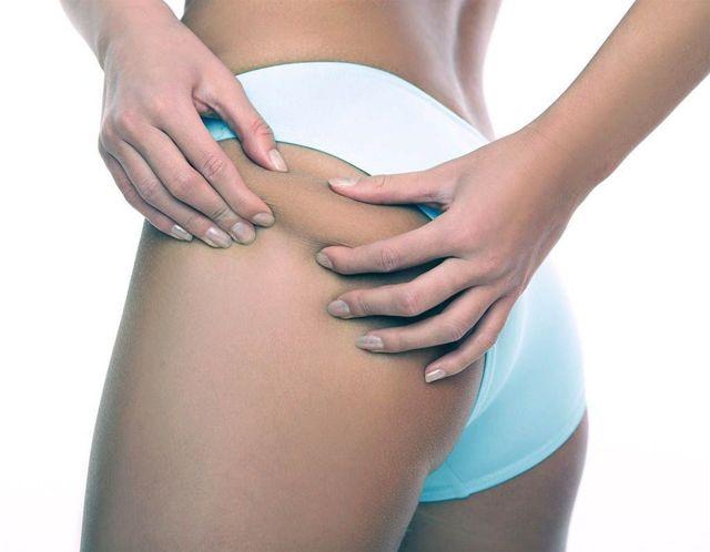 Кремы от растяжек для беременных: обзор самых эффективных косметических средств