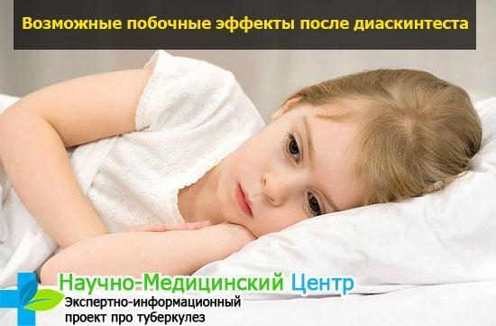 Диаскинтест - альтернатива пробы манту для детей: отличие в результатах, побочных эффектах и реакциях