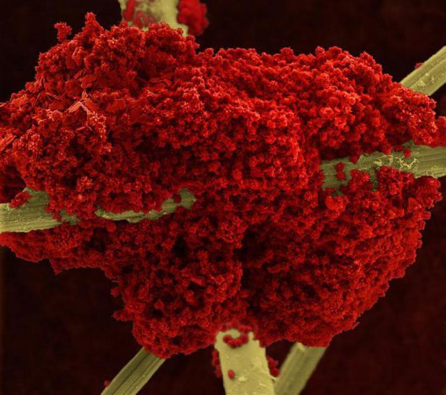 Индекс распределения эритроцитов rdw-sd: что значит его понижение и повышение в анализе крови у ребенка?