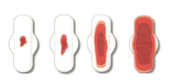 Какие выделения считаются нормой после переноса эмбрионов при эко, почему появляется кровотечение?