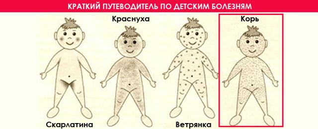 Краснуха у беременных на ранних и поздних сроках: симптомы, лечение болезни при беременности, последствия для плода