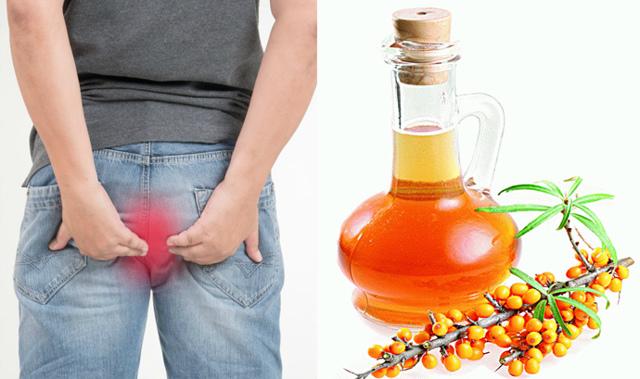 Можно ли во время беременности применять облепиховые свечи для лечения геморроя, поможет ли масло облепихи?