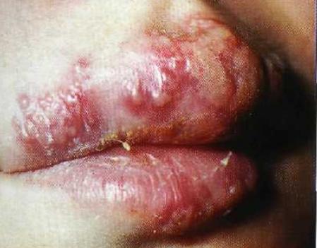 Почему у ребенка может опухнуть верхняя или нижняя губа, каковы особенности лечения?
