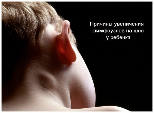 Что делать, если у ребенка за ухом воспалился и увеличился лимфоузел: причины и лечение лимфаденита