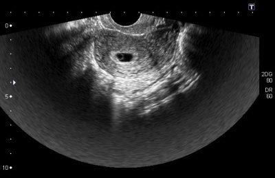 Внематочная беременность - на каком сроке можно определить и видно ли по фото на узи?