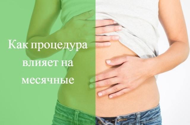 Месячные после процедуры выскабливания матки: когда пойдут, почему может быть задержка менструации?