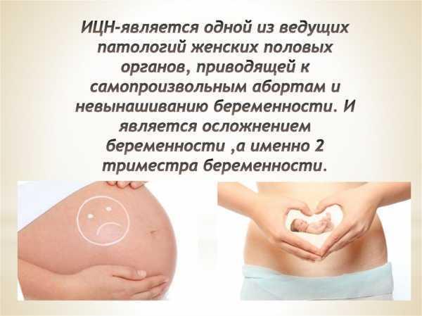 Состояние внутреннего и наружного зева матки при беременности: что означает их раскрытие или закрытие?