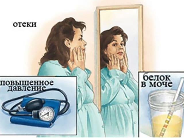 Гестоз и его признаки при беременности: что это такое и каковы его причины, в чем опасность патологии и как ее лечить?
