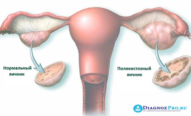 Как после лапароскопии планировать беременность: когда можно снова зачать ребенка?