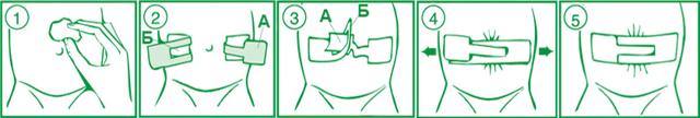 Зачем нужен пластырь для пупочной грыжи у новорожденных и как правильно его наклеить?