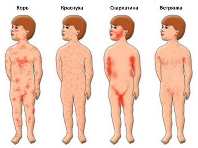 Красные прыщики и другие виды сыпи у новорожденных и грудничков: причины возникновения высыпаний на лице и теле