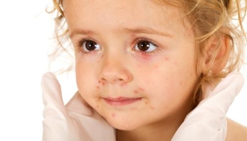 Сколько раз и когда делают прививку от краснухи детям, как называется вакцина и хорошо ли переносится ребенком?