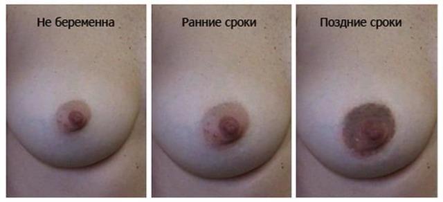 Грудь женщин при наступлении беременности: как выглядят грудные железы беременной и какие изменения в них происходят?