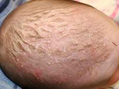 Почему у ребенка на пальцах рук и ног облазит и шелушится кожа: причины и методы лечения