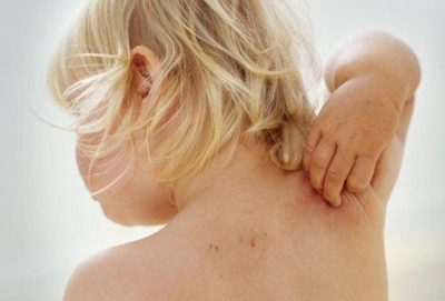 Мелкая сыпь на руках и ногах у ребенка: виды и фото прыщиков с пояснениями